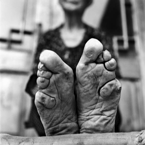 Shocking Photos Capture The Last Remnants Of China's Painful Foot Binding Tradition