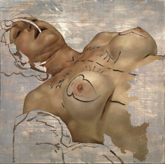 Going Under The Knife: Beautifully Grotesque Paintings Of Cosmetic Surgery